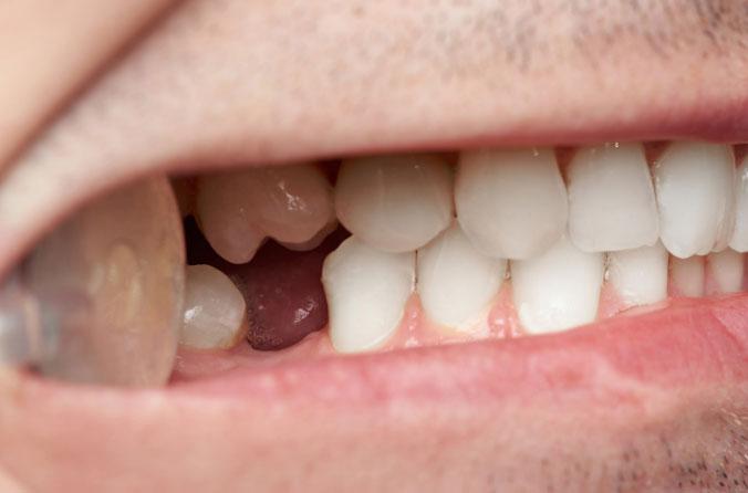 wenn einige Zähne fehlen